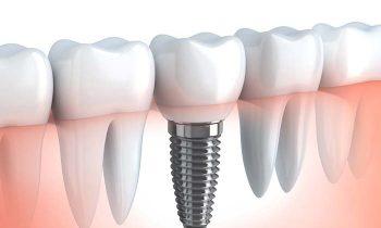 implantate_hd
